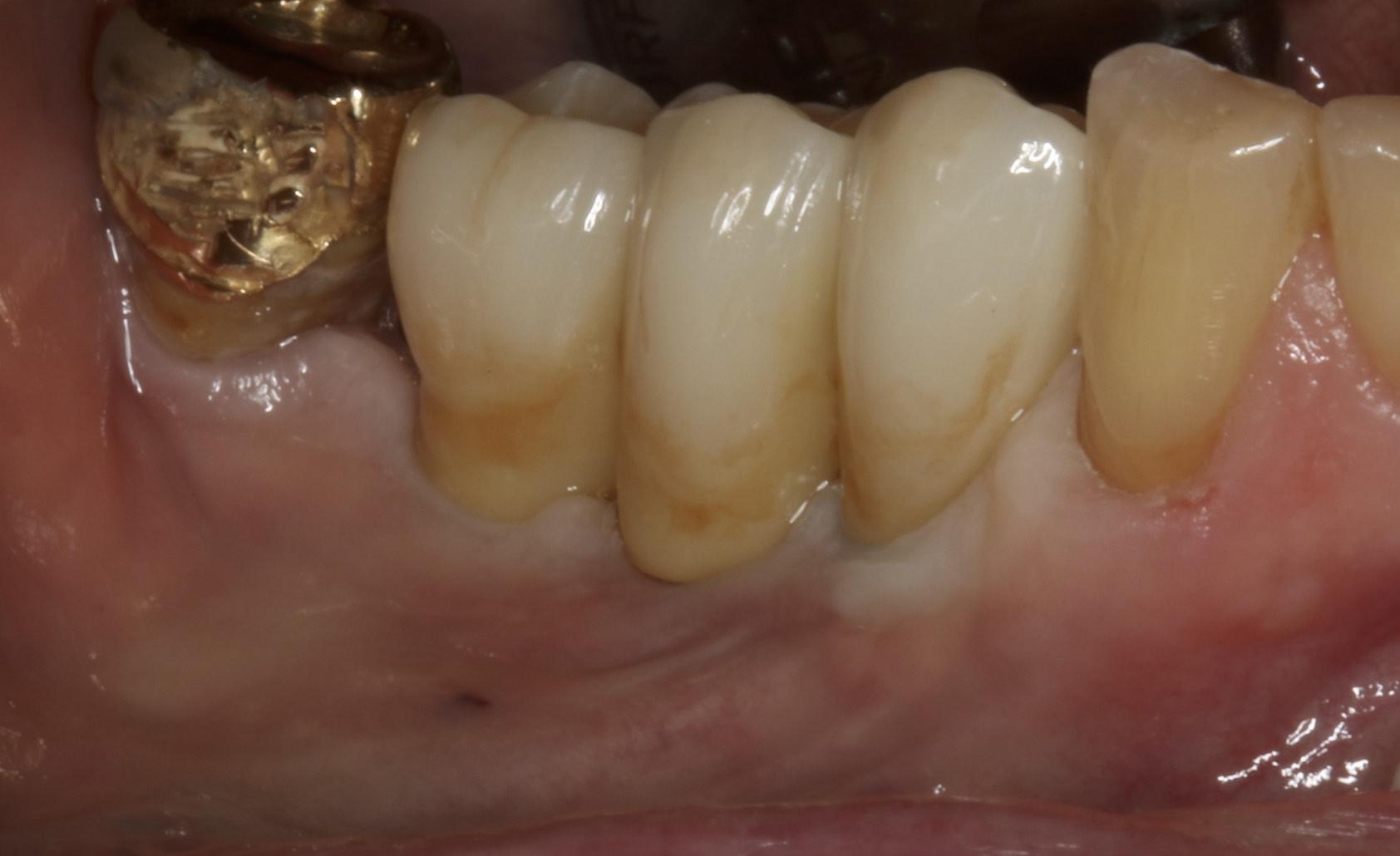 Dental Implant Bridge in mouth