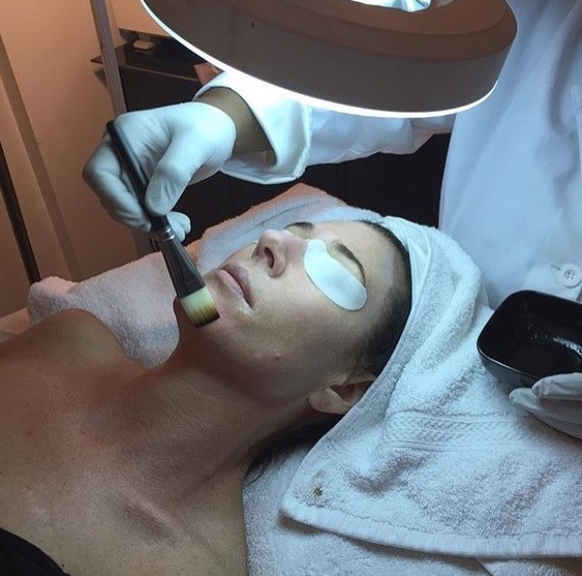 IMPROVE THE APPEARANCE OF YOUR SKIN - GET A CHEMICAL PEEL