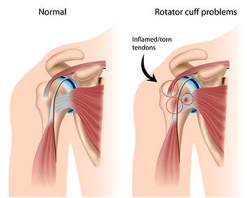 rotator cuff, rotator cuff scheur, subacromiaal impingement, schouderpijn, revalidatie, sportkinetics.