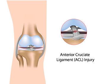 Kniepijn, revalidatie, Sportkinetics, sportkinesitherapie, knieblessure, kinesitherapie, voorste kruisband, ACL.