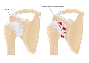 Frozen shoulder, adhesieve capsulitis, kinesitherapie, sporkinesitherapie, schouderpijn, sportkinetics.