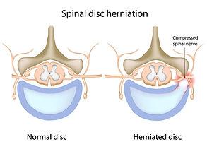 Discus hernia, discusbulging, lumbalgie, lage rugpijn, kinesitherapie, revalidatie.