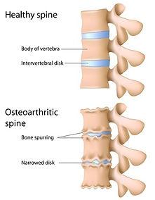 arthrose rug, degeneratie rug, lumbalgie, lagerugpijn, sporkinesitherapie, kinesitherapie.