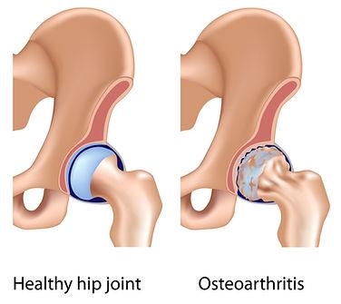 Heupgewricht, heuppijn, revalidatie, sportkinesitherapie, revalidatie, Sportkinetics, osteoarthritis.