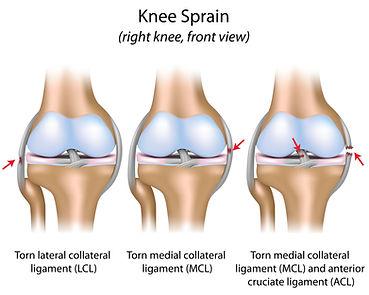 Kniepijn, revalidatie, Sportkinetics, sportkinesitherapie, knieblessure, sportkinesitherapie, knietorsie, voorste kruisband.