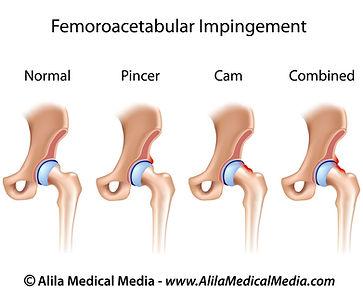 Heupgewricht, heuppijn, revalidatie, sportkinesitherapie, revalidatie, Sportkinetics, femoroactebulair impingement, heupinklemming.