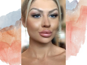 Lip Fillers – everything you need to know but didn't know you needed to ask