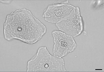 Squamous Epithelial cells