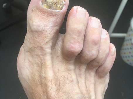 Do I have a fungal infection on my feet?