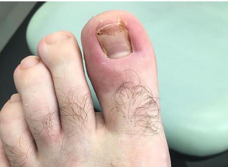 Let's talk about ingrown toenails!