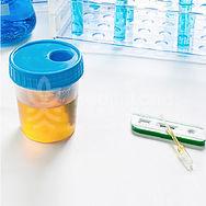 非淋菌性尿道炎, HealthLand諾康健 -pic08