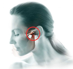 TMJ-pain-and-dysfunction