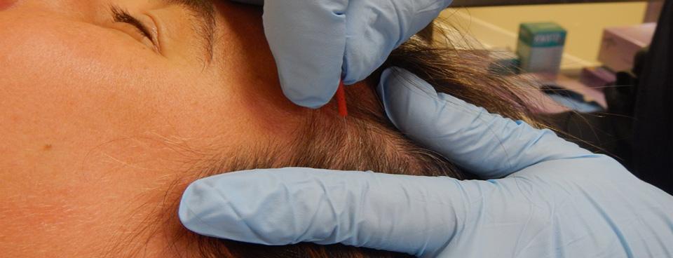 temporalis-dry-needle