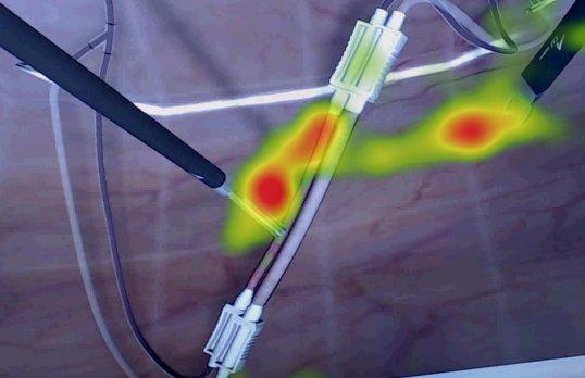 Eye Tracking Surgeons in Laparascopy