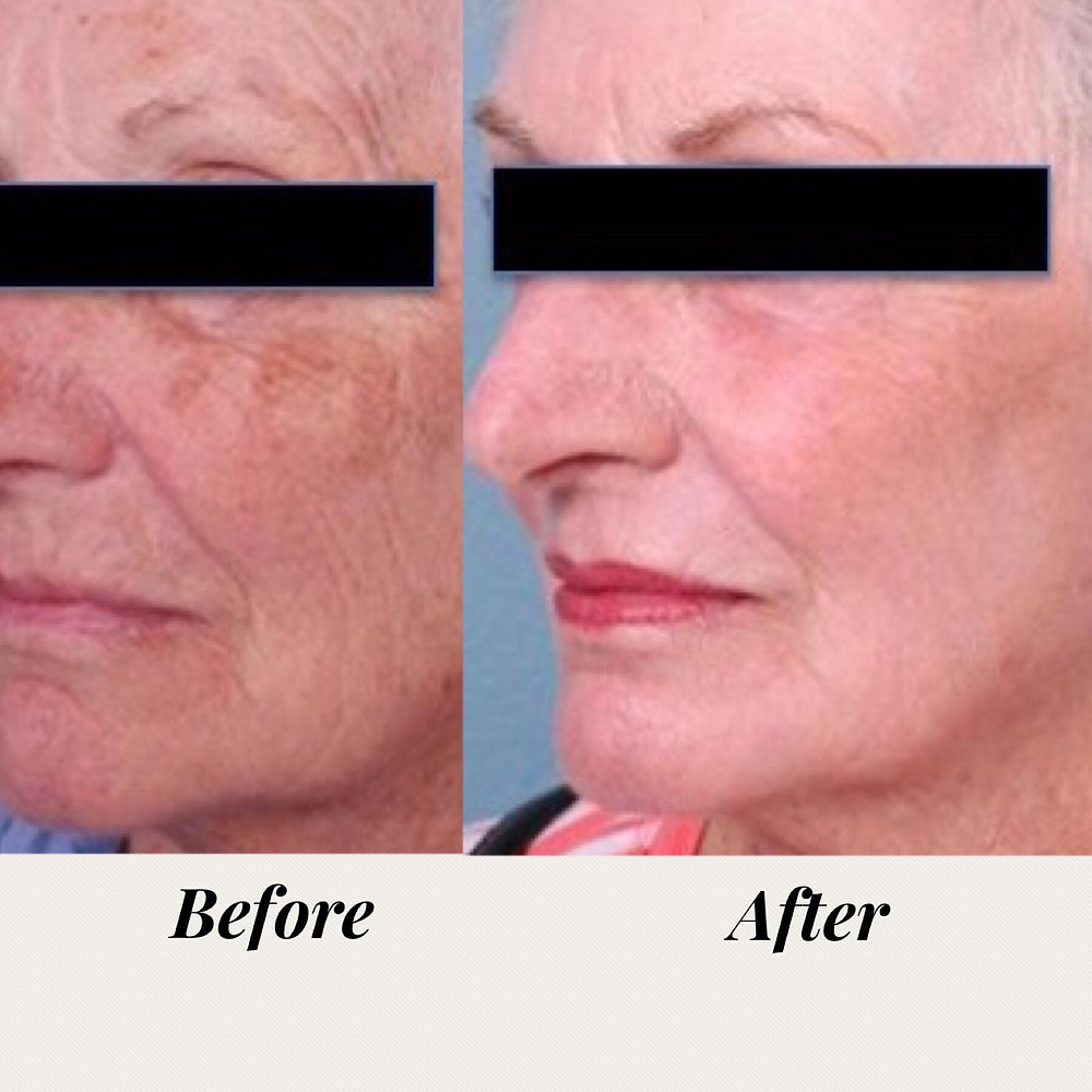 Before and after one Laser Resurfacing Treatment.