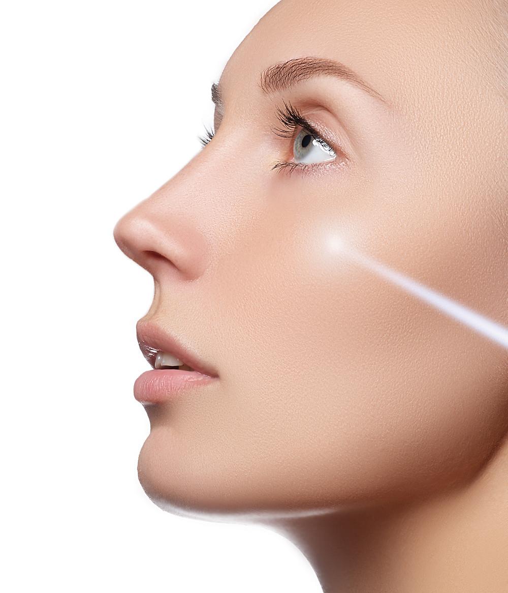 Laser rejuvenation with IPL, Intense Pulsed Light.