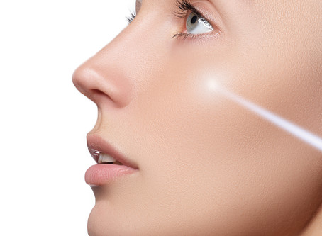 The Lunchtime Laser Facial
