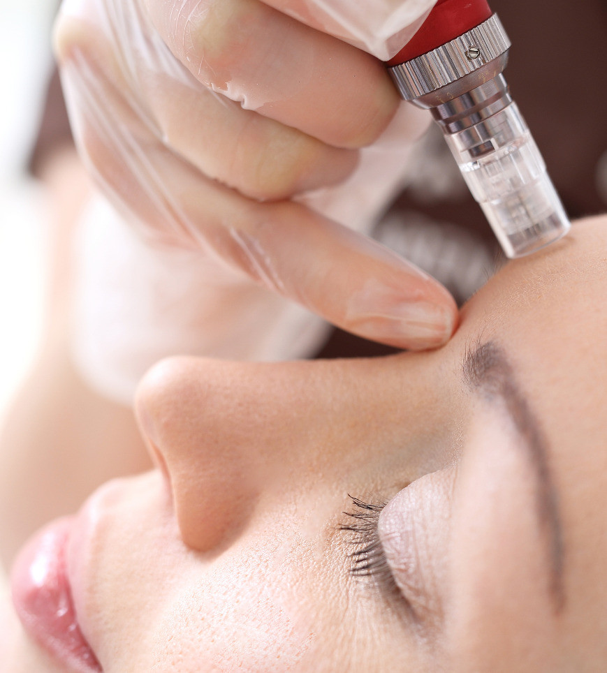 Microneedeling induces collagen production for firmer, plumper skin.