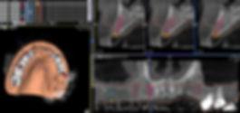 3D Panung2.jpg