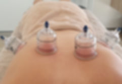 Retrain Health Osteopath Massage Cupping Byron Bay Ballina