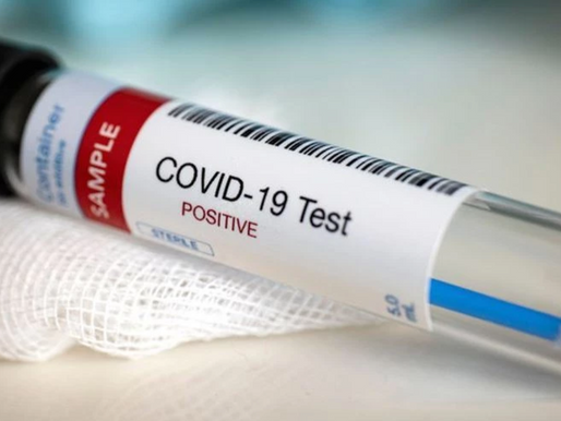 Cannabis Start-Up Develops COVID-19 Test That Can Detect Virus Within Minutes