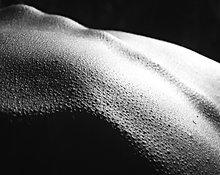 Sol escama de pele
