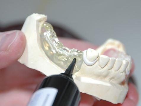 Odontotecnici: il 6 giugno il webinar per la categoria