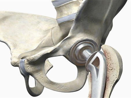 How Long Will a Hip Replacement Last?