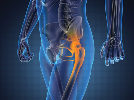 When Is the Best Time to Get Hip Replacement Surgery?