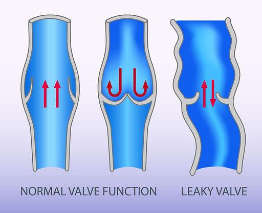 leaky-valve-insert-1711-05-06-3675x2995.