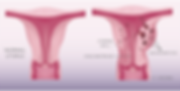 normal-vs-adenomyosis-1400x704.png
