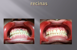 RECINAS