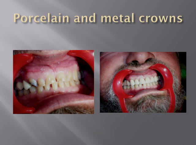 PORCELAIN AND METAL CROWNS