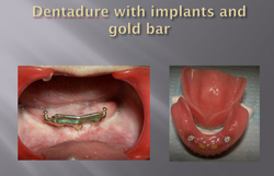 DENTADURE WITH IMPLANTS AND GOLD BAR