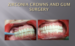 ZIRCONIA CROWNS AND GUM SURGERY