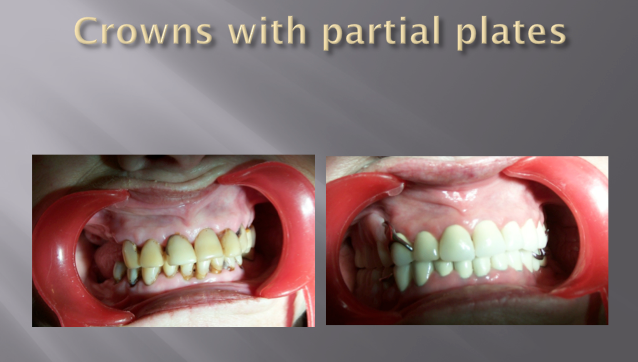 CROWNS WITH PARTIAL PLATES