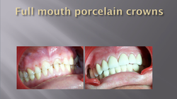 FULL MOUTH PORCELAIN CROWNS
