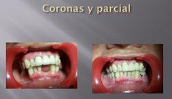 CORONAS Y PARCIAL