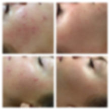 Dermapen Acne treatment birmingham solihull