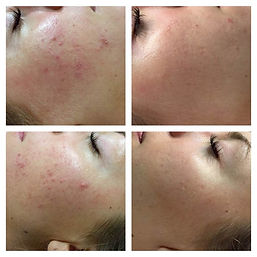ACNE BREAKOUTS IMAGES.jpg