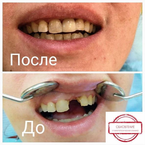 InShot_20200529_120915271.jpg