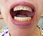審美歯科期間