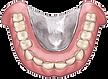 快適な入れ歯