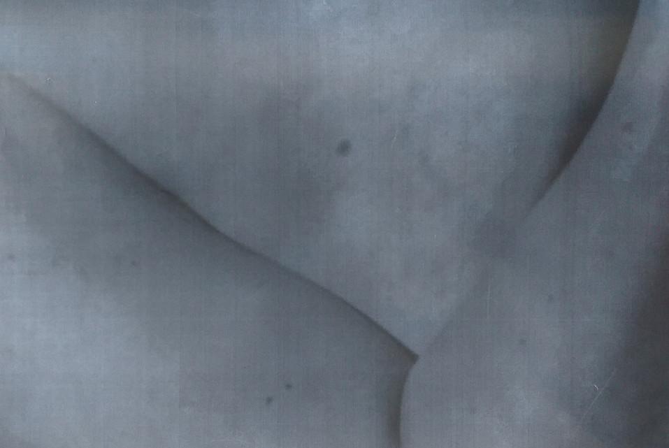 skin12.jpg