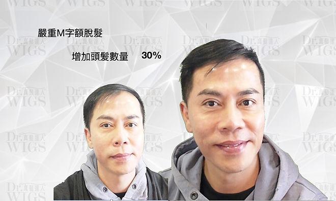 織髮增加30%