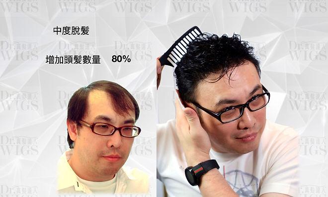 織髮增加80%