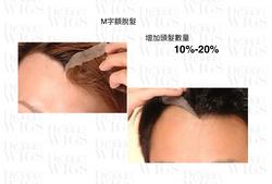 迷你型增髮技術
