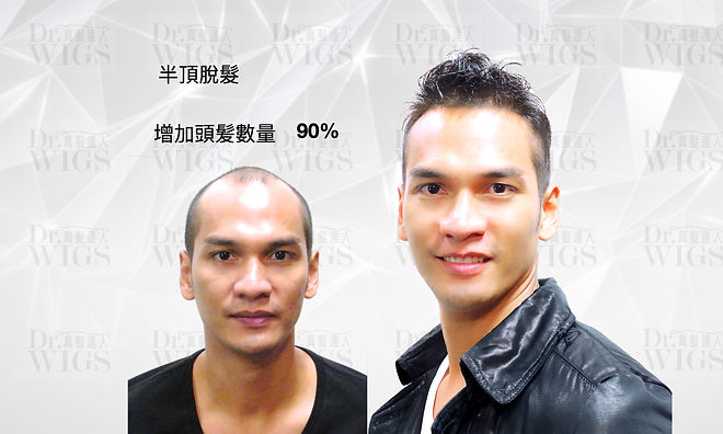 織髮增加90%