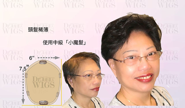 頭髮稀薄(過度電染髮引起)