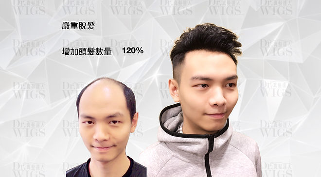 織髮增加130%